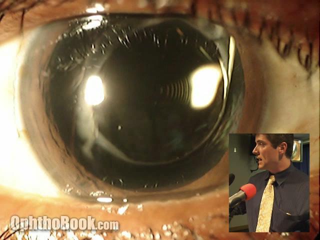 Restor Lens