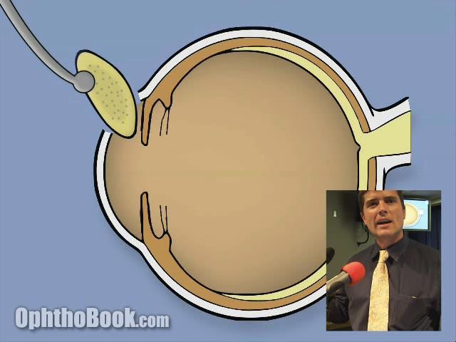 Intracapsular cataract surgery