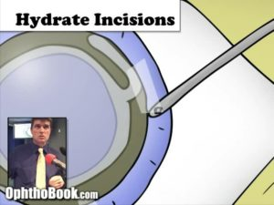 hydrating keratome incision