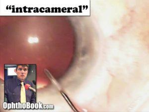 Intracameral