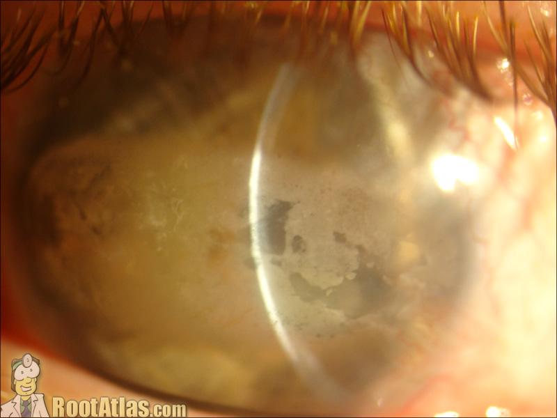 Band Keratopathy EDTA chelation (Video) - TimRoot com