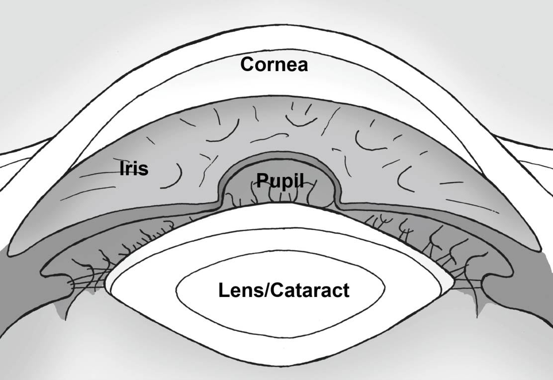Picture of cataract inside eye