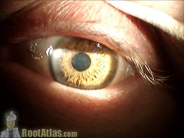 corneal EKC