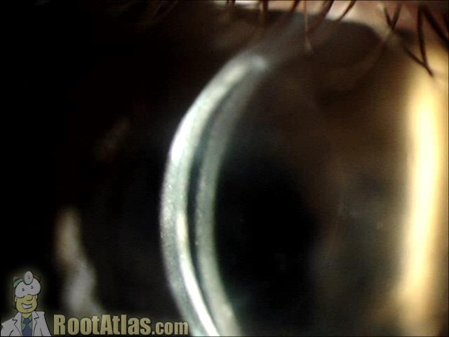 Corneal lens