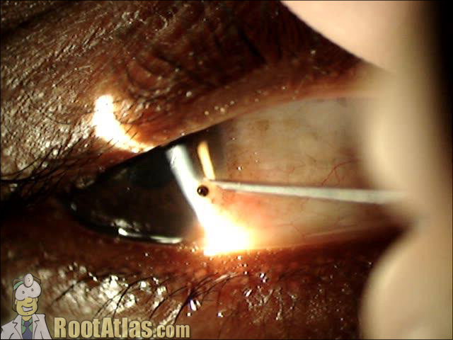 Needle in cornea