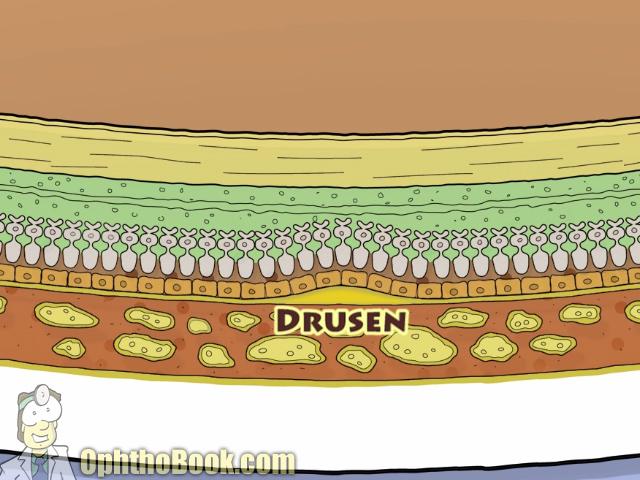 Drusen under retina