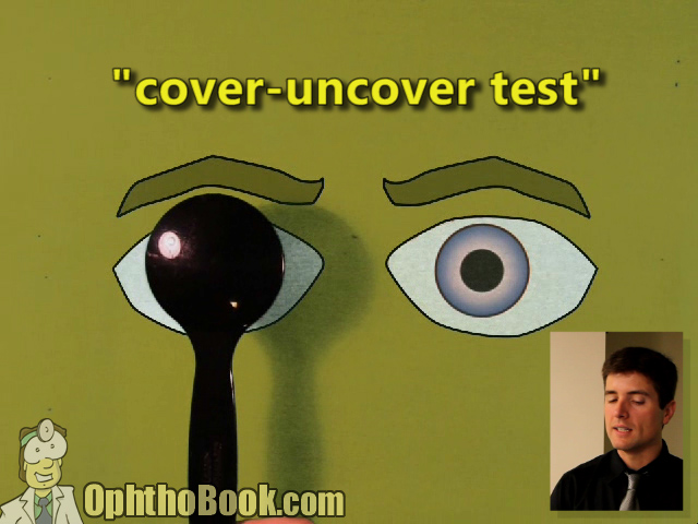 Cover Uncover Test