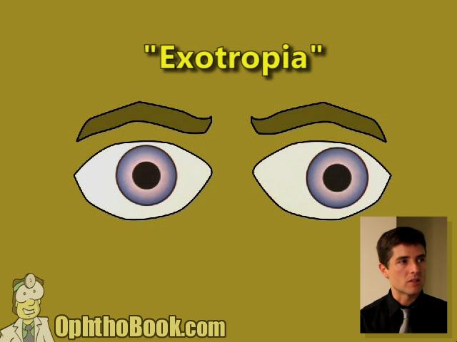 Exotropia
