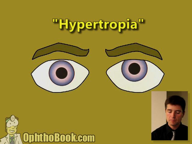 Hypertropia