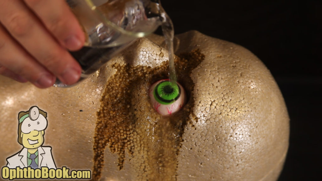 Acid and Base Burn Eye