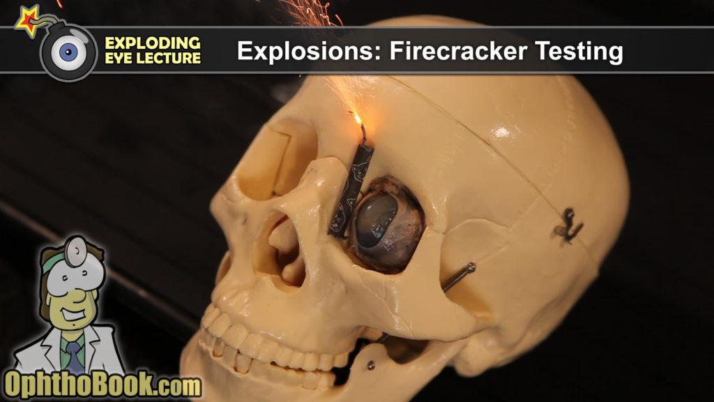 Firecracker Testing