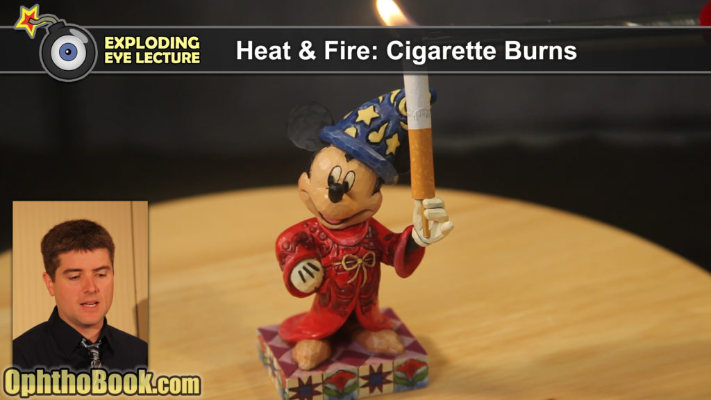 Disney Smoking Injuries