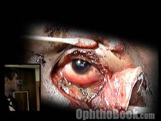 Eyelid laceration