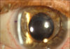 Silicone oil in the anterior chamber