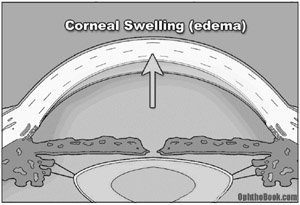 gl-cornealedema.jpg
