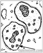 inf-gonorhea.jpg