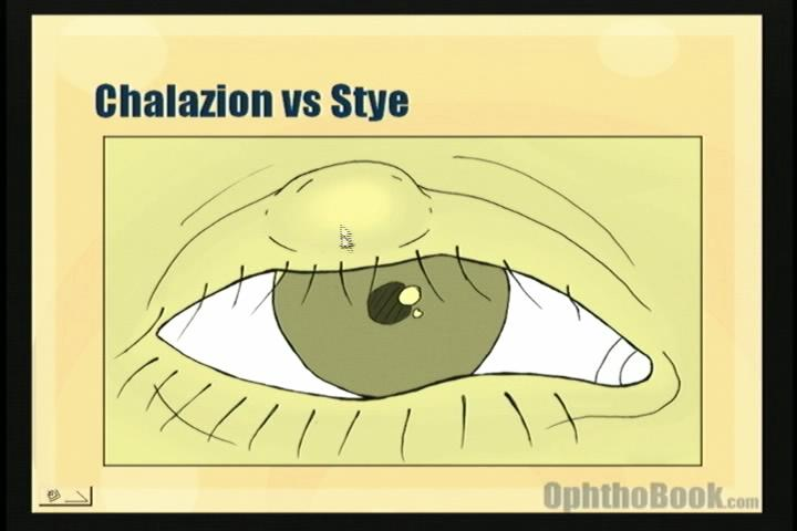 infection-chalazion.jpg