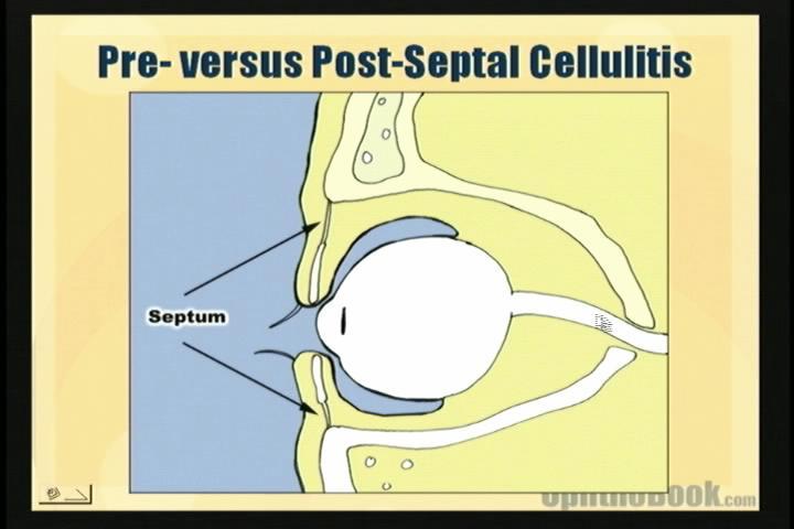 infection-septum.jpg