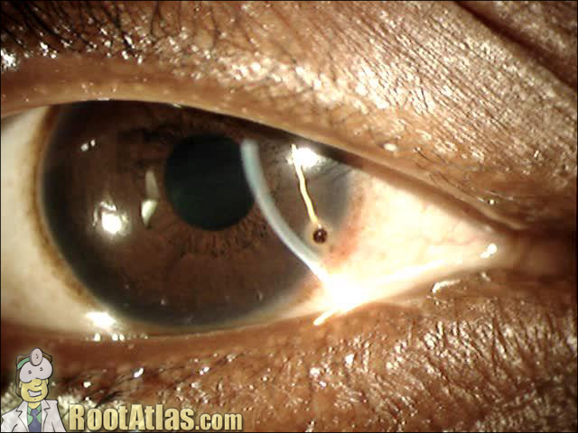 Metal in eye