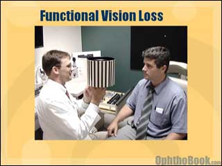 neurovideo-functional.jpg