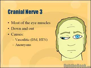 neurovideo-oculomotornerve.jpg