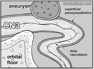 no-berryaneurysm.jpg