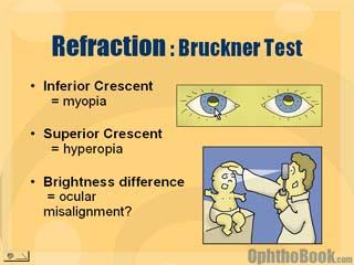 Bruckner Test