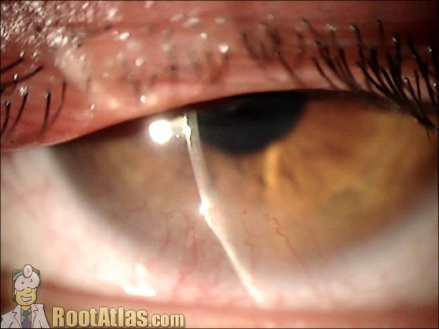 phlyctenule on cornea