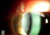 pseudoexfoliation lens