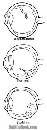ret-retinaldetachmenttypes.jpg