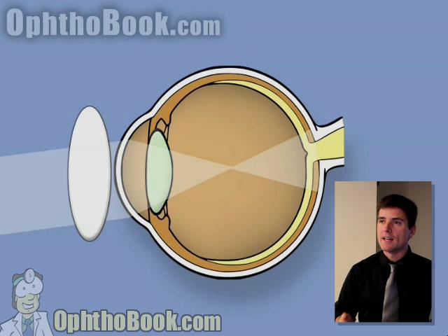 retinopathy - against motion