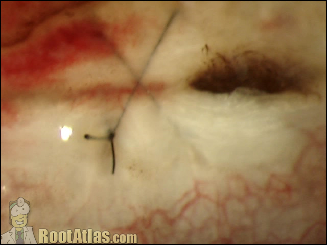 Scleral Suture