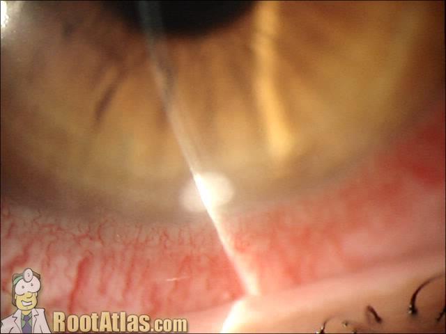 Marginal ulcer at limbus