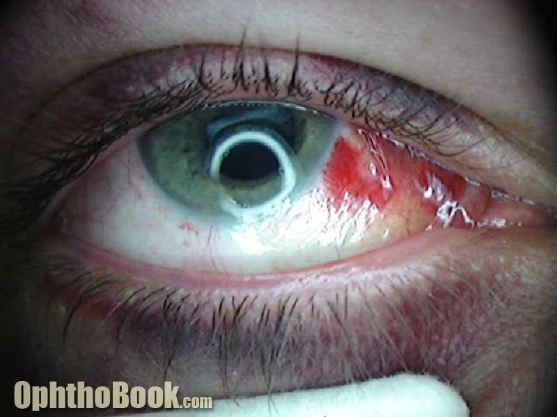 Conjunctiva blood