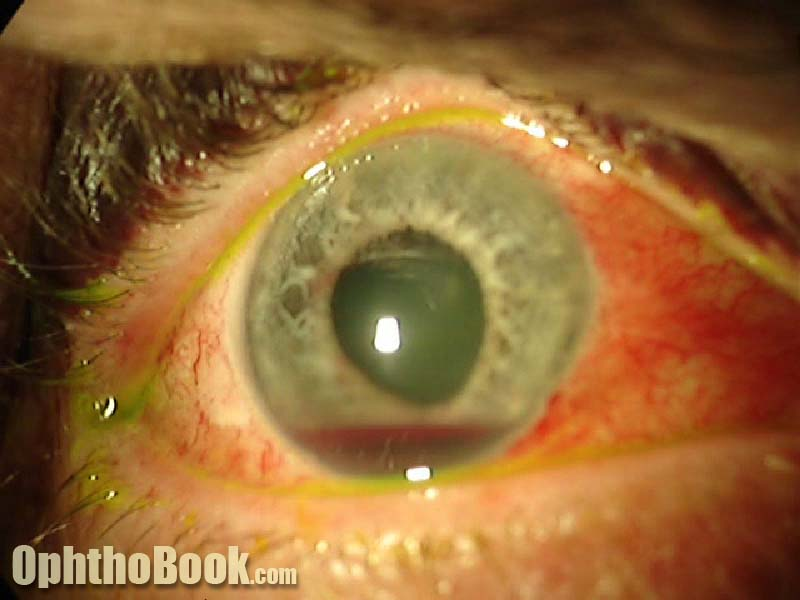 Eye Trauma Lecture - TimRoot com