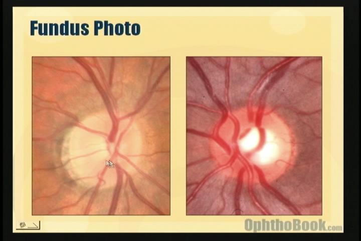video-glaucoma-opticnerve.jpg