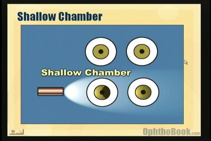 video-glaucoma-shallowpenlight.jpg