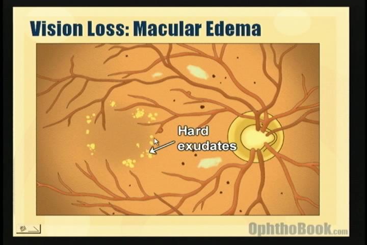 video-retina-hardexudates.jpg