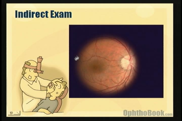 video-retina-indirect.jpg