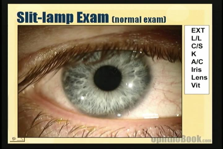 This Section Of The Video Goes Through The Slit Lamp Exam In A Step By Step  Maner. This Is A Normal Exam.
